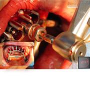 Mise_en_charge_imm%c3%a9diate_-_chirurgie_guid%c3%a9e_13_qonqex
