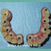 Positdental_mise_en_charge_imm%c3%a9diate_013_s08csw