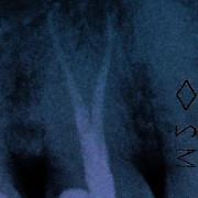 Dscf2280_cybwak