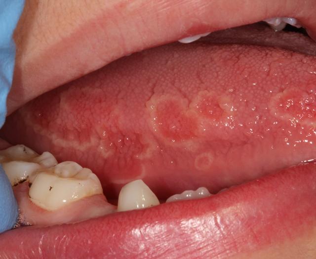 langue depapillee et douloureuse