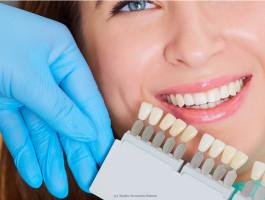 Veneers sorgen für strahlend weiße Zähne - (c) studio romantic Fotolia