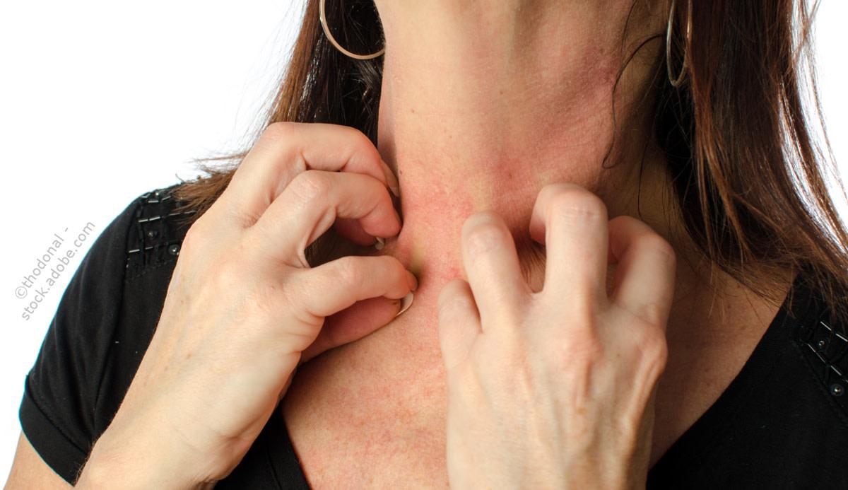 Allergische reaktion thodonal adobestock 73551252znumta