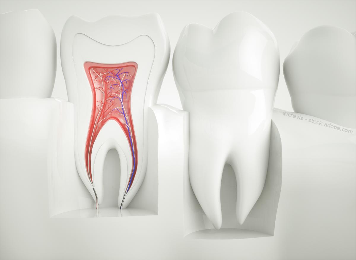 Wurzelbehandlung zahn crevis adobestock 125586140frdne0
