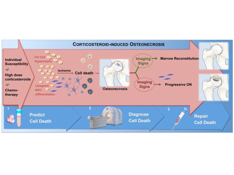 Illustration for knee imaging study