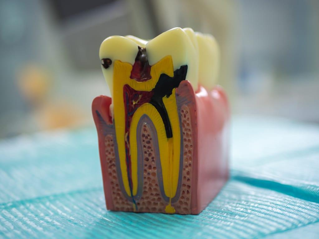coupe dent attaquee par carie