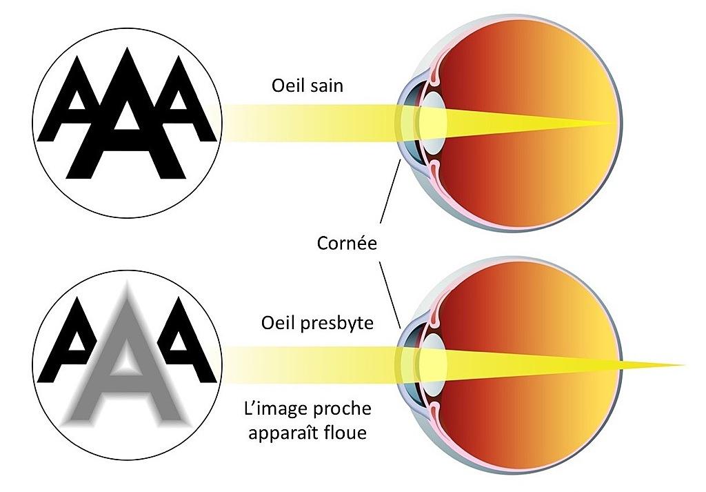 presbyte ophtalmologie bagnolet