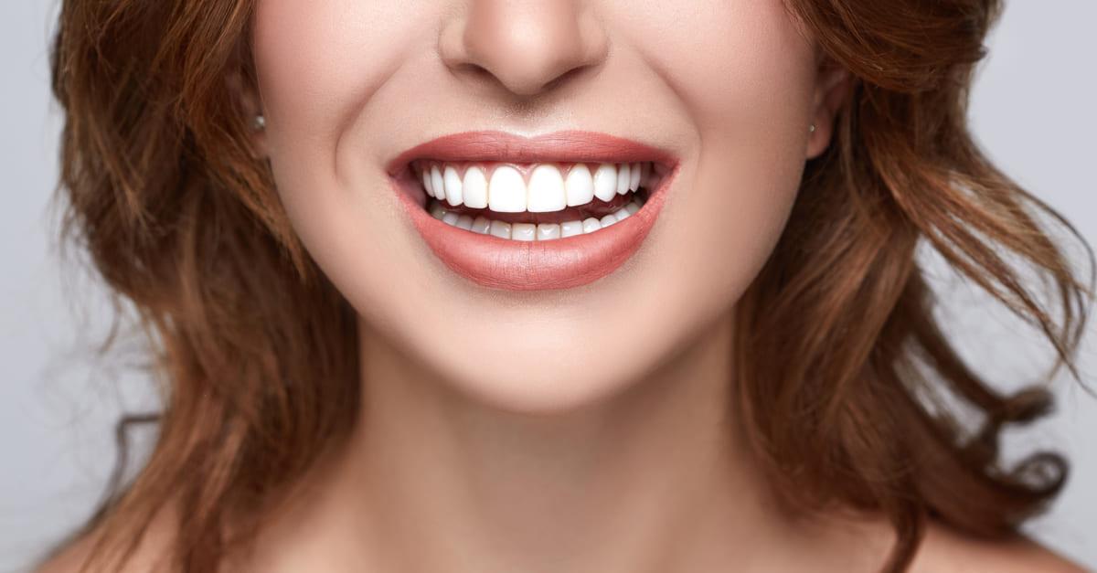 sourire parfait lèvres