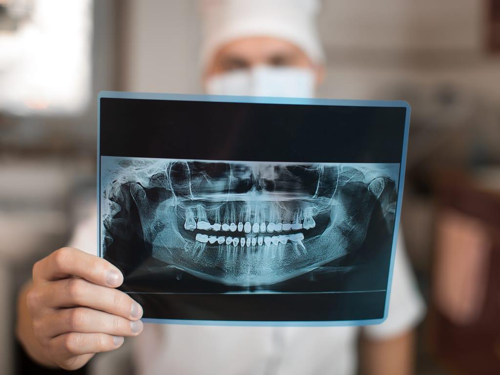 radio panoramique dentaire