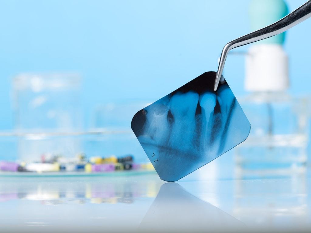 radio dent avec implant
