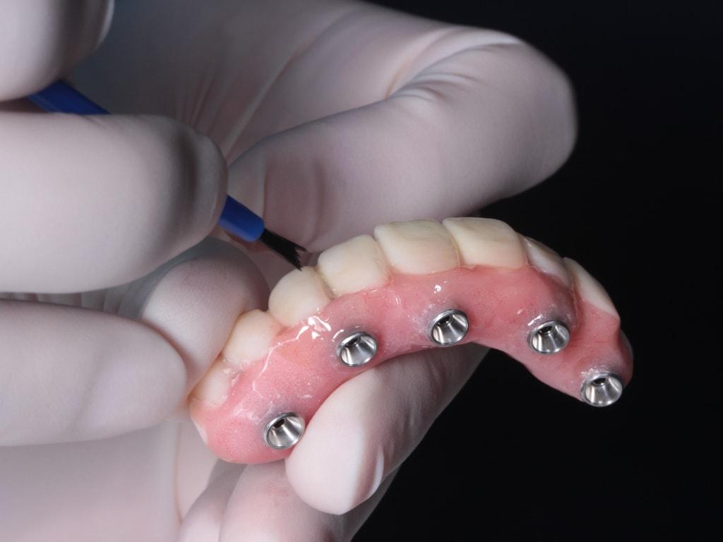 prothesiste dentaire preparant un bridge complet sur implants
