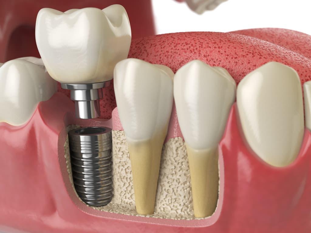 implant dentaire maquette