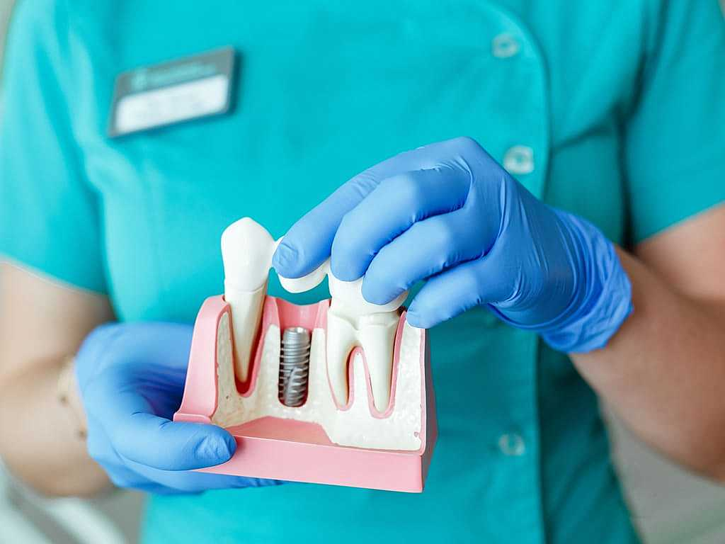 assistante_dentaire_montrant_principe_implant_dentaire