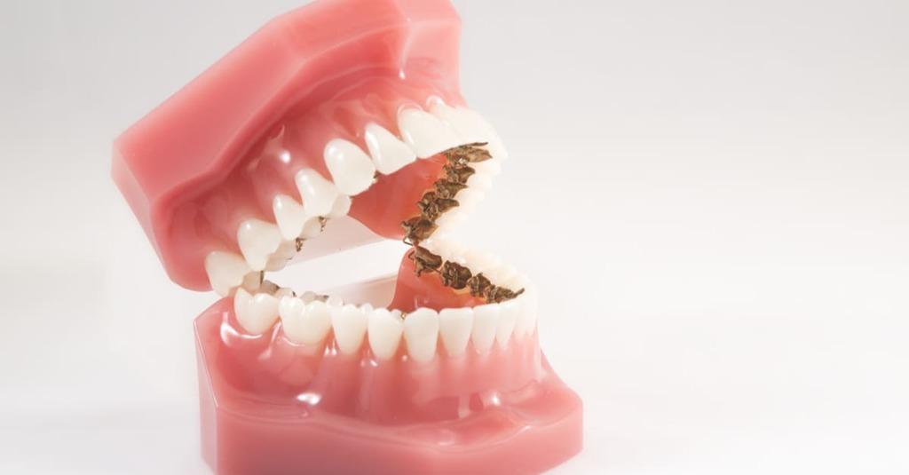 machoir plastique lingual