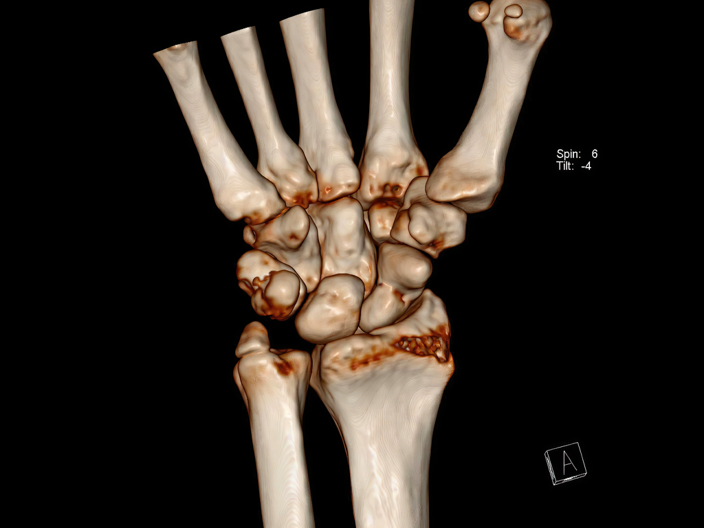fracture du scaphoïde - chirurgien orthopédiste nantes