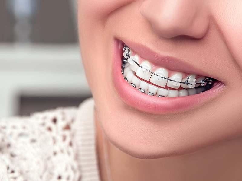 orthodontie_adolescent_2