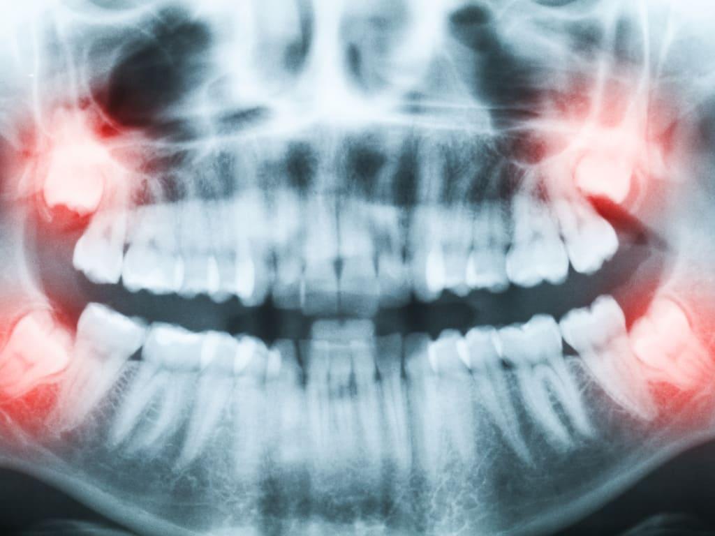 dents de sagesse radio