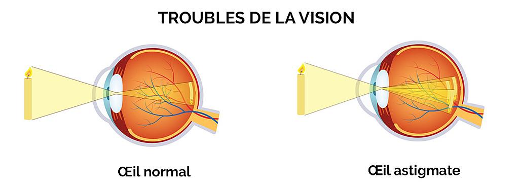 astigmate bagnolet ophtalmologue