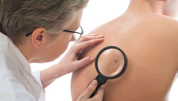 Skin Exam