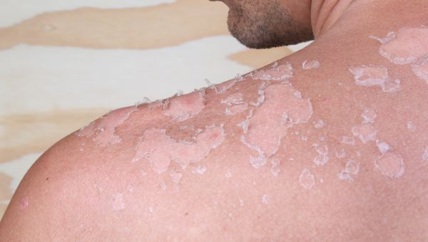 simple ways to spot skin cancer slideshow - sharecare,