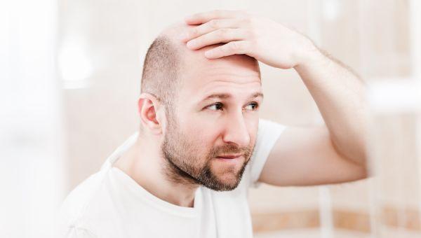 Hair Disorders