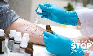 Know Before You Go: The Allergist