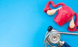 What Causes Endometriosis?