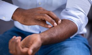 5 Psoriasis Treatments—and How to Choose the Right One for You