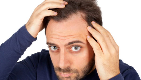 Hair Loss Quiz