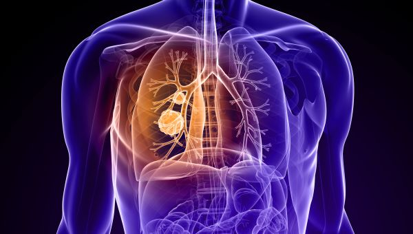 Immunotherapy May Help Lung Cancer Patients Live Longer