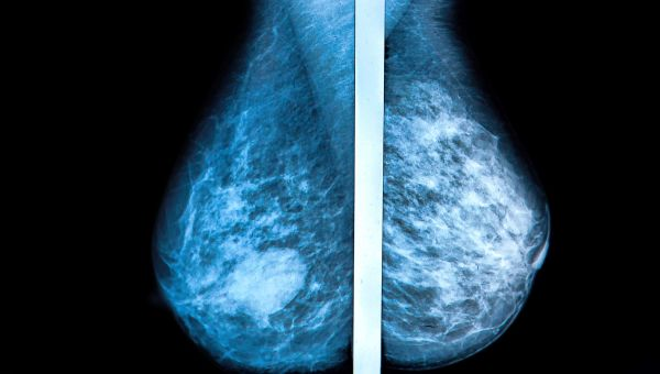 The Surprising Breast Cancer Risk Factor You May Not Know About