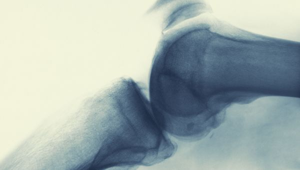 What Are Tenosynovial Giant Cell Tumors?