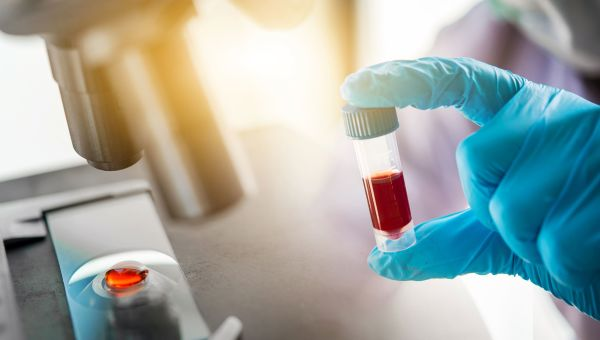 Antibody Testing: Why It's Not a Guarantee of Immunity to COVID-19