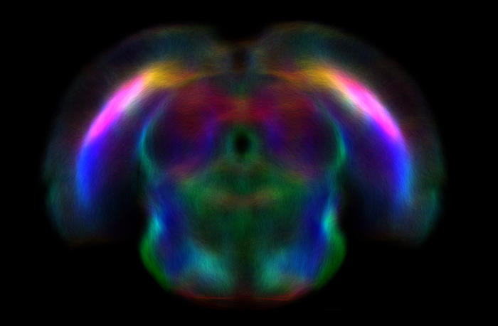 MRI images of a rat brain showing the white matter pathways that traverse the brain. The direction of the pathways are colour-encoded with red representing pathways that traverse from left to right, green front to back and blue top to bottom. Picture: David Wright, University of Melbourne and Florey Institute of Neuroscience and Mental Health