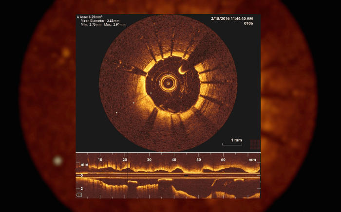 A still image of the interior of one of the patient's arteries, captured using tiny optical coherence tomography (OCT) during surgery at St Vincent's Hospital, Melbourne. Picture: Paul Burston
