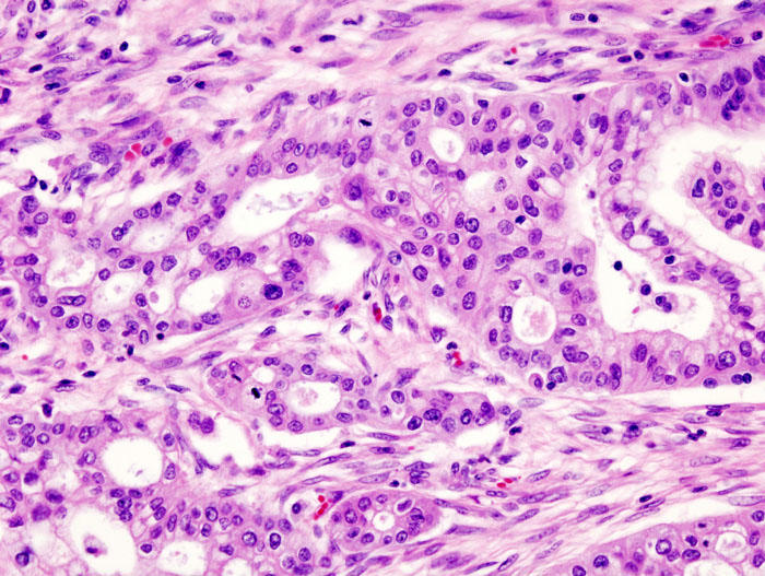 Micrograph of pancreatic ductal adenocarcinoma, the most common type of pancreatic cancer. Picture: KGH/Wikipedia